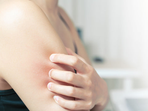 how to avoid eczema triggers