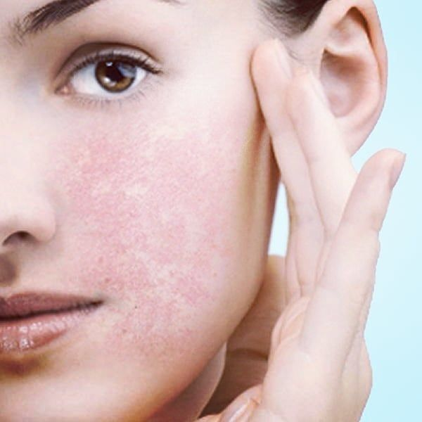 How to Care for Sensitive Skin