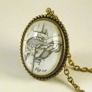 Pulling Teeth Engraving from 19th Century Dental Engraving Necklace