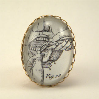 Pulling Teeth Engraving from 19th Century Dental Engraving Cocktail Ring