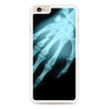 Hand X-Ray iPhone 6 Plus | 6s Plus case