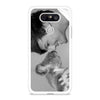 Louis William Tomlinson One Direction LG G5 case