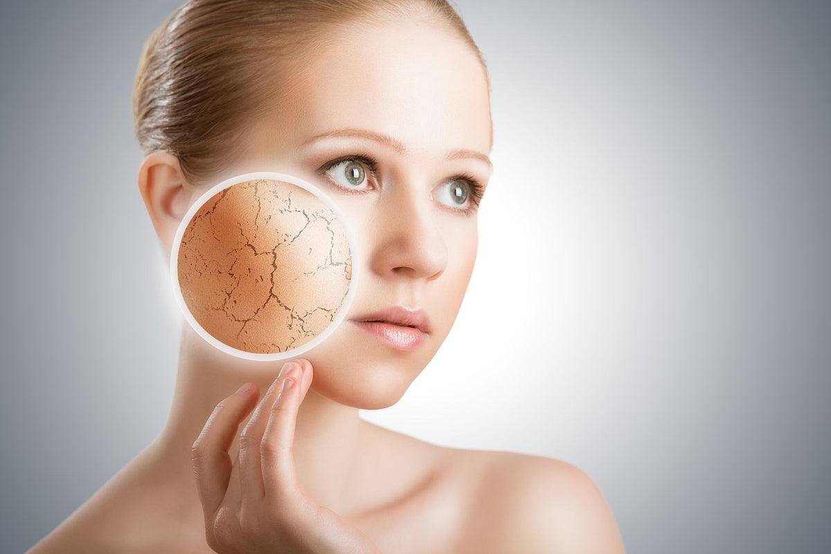 5 Reasons Why Your Skin May Be Dry