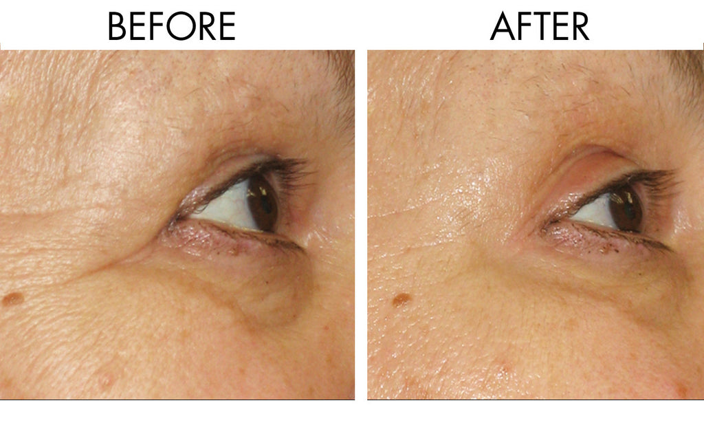 How to Reduce Fine Lines and Wrinkles | Anti-Aging Beauty Tip