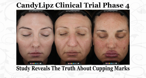 CandyLipz- A Clinical Trial Study of Cupping Marks