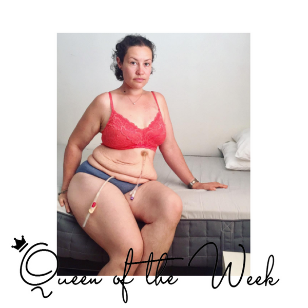 Queen Of The Week 11: With IMOGEN of The Feeding Of The Fox