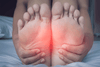 4 Signs You Might Have Plantar Fasciitis