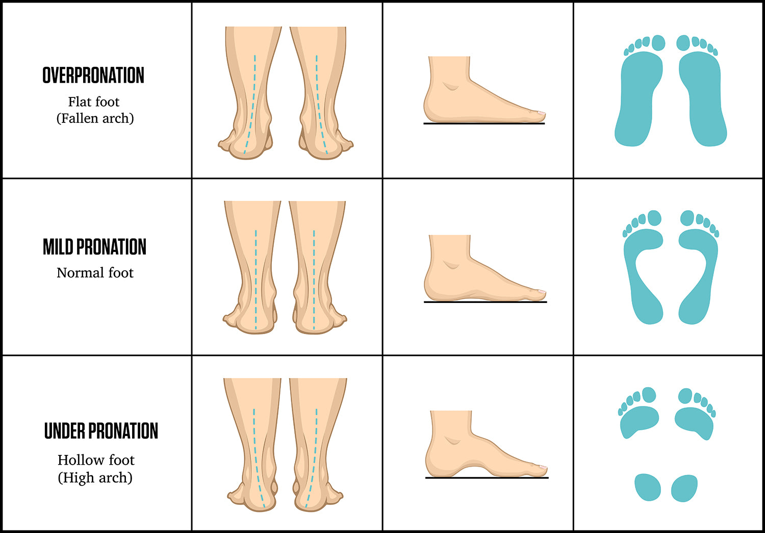 What is pronation of the foot