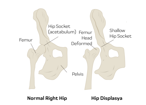 signs of hip dysplasia