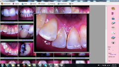 ProDENT Dental Intraoral Camera USB connection PD740 2017 version
