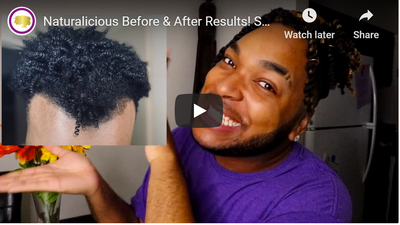 Jalen's Before & After - Spanish Almond Regrowth Oil