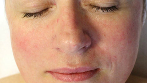What is Rosacea and What Are the Symptoms?