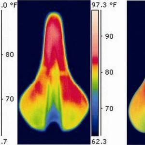 Effect of Bicycle Saddle Designs on the Pressure to the Perineum of the Bicyclist