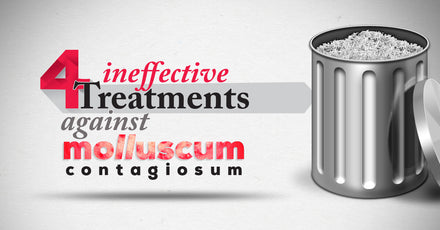 4 Treatments That Are Ineffective Against Molluscum Contagiosum