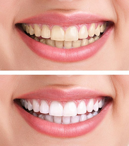 Best Teeth Whitening Activated Charcoal with Coconut  - Natural Teeth Whitening at Home - Mint Flavor