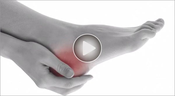 Dr. Sutera explains heel pain