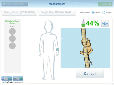 Software BeamMed Patient Measurement Paed 1