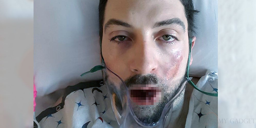 American man loses teeth after vape pen explodes in his mouth (18+)