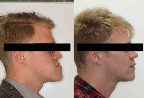 Jaw Surgery Recovery | Oldham | Manchester Orthodontics