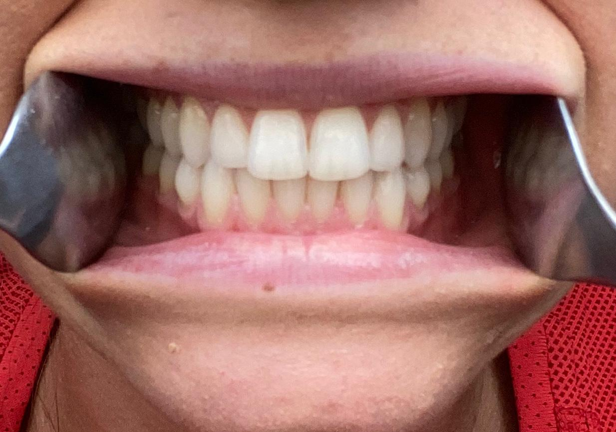 Adult Braces Remote Consultation | Teeth Straightening | Oldham | Manchester Orthodontics