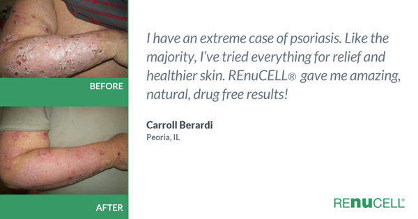 Before&After Photo of arms & Testimonial from Carrol Bernardi, who suffered from psoriasis