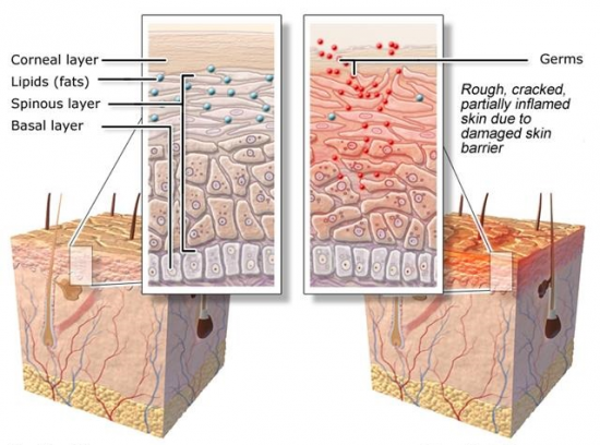 LEFT: Healthy skin. RIGHT: Dry skin. Image from informedhealthonline.
