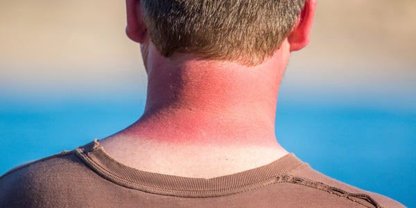 Apply sunscreen on you ears and back of your neck. Every day.