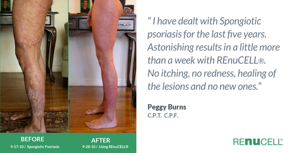 Before&After photos of Peggy Burns legs suffering from Spongiotic Psoriasis