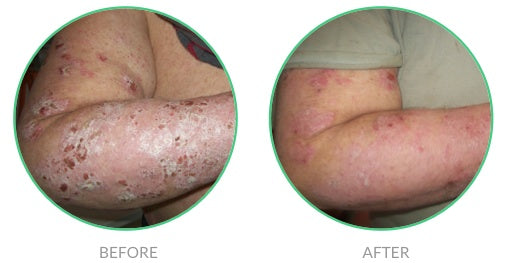 Extreme case of psoriasis before and after