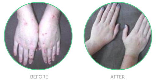 Renucell for Eczema on Hands