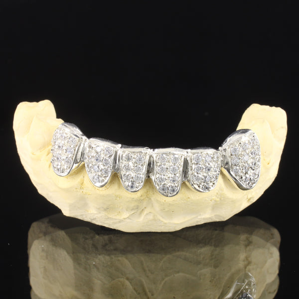 Iced Out 10k White Gold Custom Fit Men's Grillz