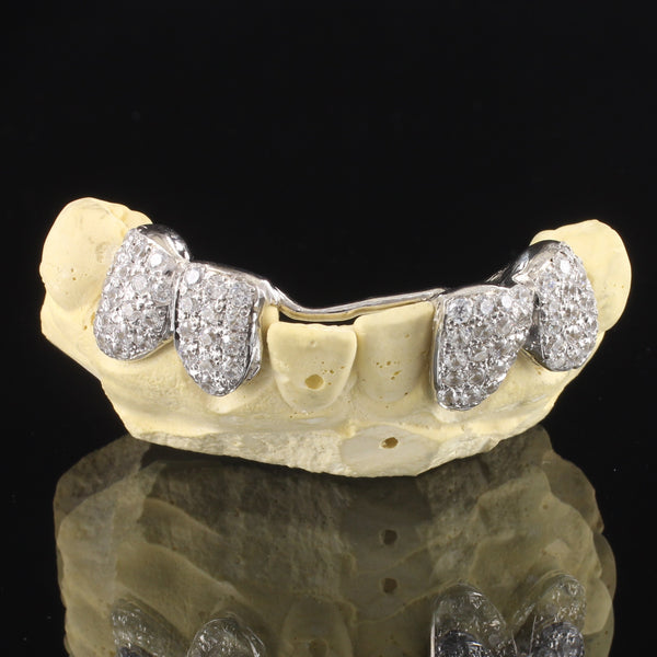 Custom Fit 10k Gold Iced Out 4 Teeth with Back Bar