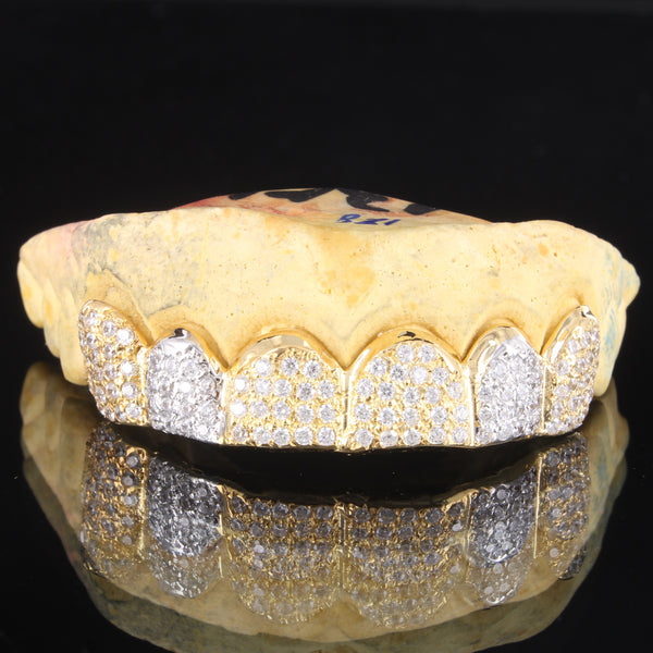 Iced Out Two Tone 10K Gold Custom Fit Top &Bottom Grillz