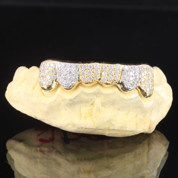 Bling Two Tone 10K Gold Custom Fit Top &Bottom Grillz