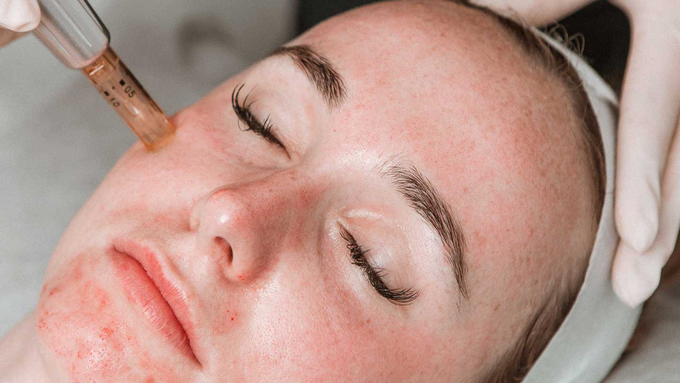 Skin Needling | The Skin Boutique