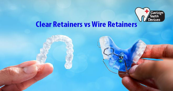 Clear Retainers vs Wire Retainers