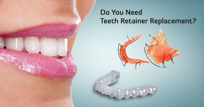 Find Affordable Replacement for Teeth Retainers Online