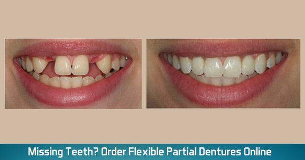 Partial teeth pictures