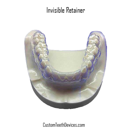 Invisible (Clear) Retainer