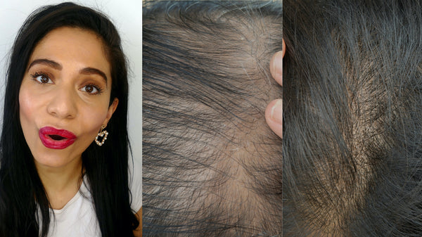 How can we reduce DHT on the scalp?