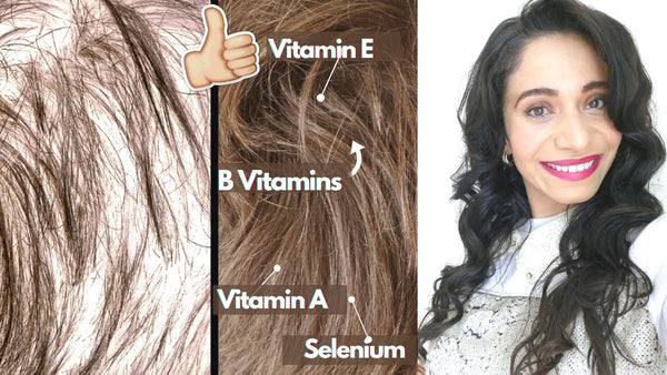 Do vitamins help your hair grow