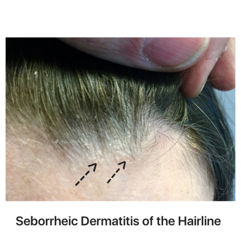 seborrheic dermatitis of the hairline and hair loss