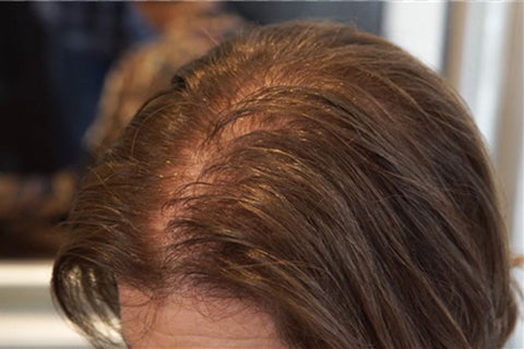 diffuse thinning in women