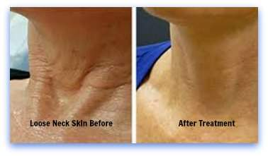Loose Neck Skin Before And After Treatment