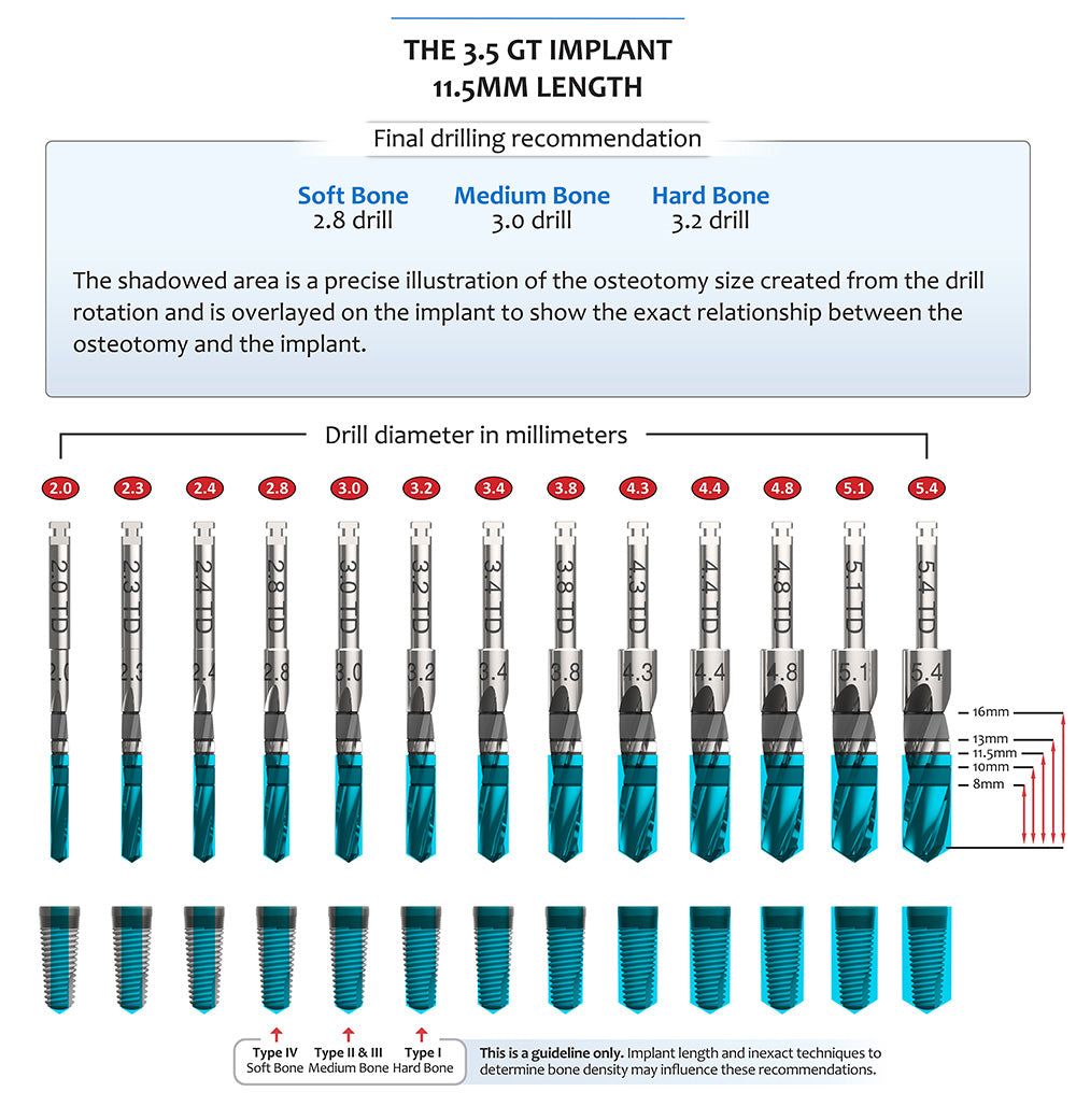 The 3.5 GT Implant 11.5MM Length