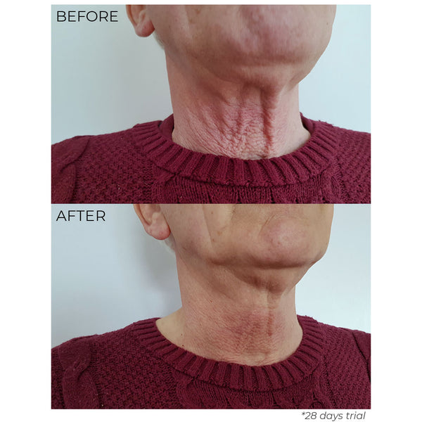 Nourish London Before & After Results Anti-Ageing T.S.L Tighten Sculpt & Lift Neck Elixir Cream