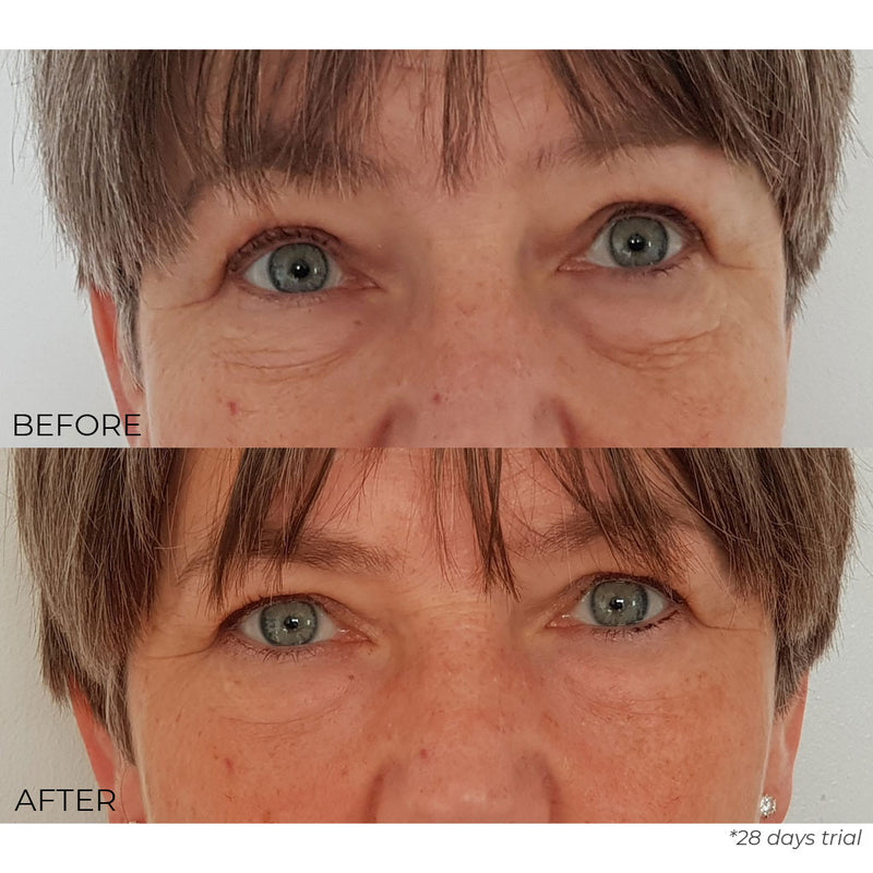 Nourish London Kale Anti-Ageing Eye Cream Results Before After