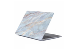 Baby Blue Marble Macbook Protective Case