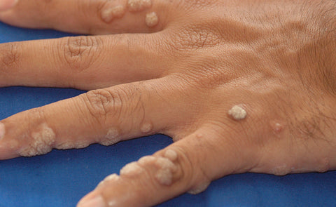 CBD oil and Warts