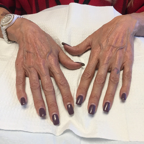 Aging hands After